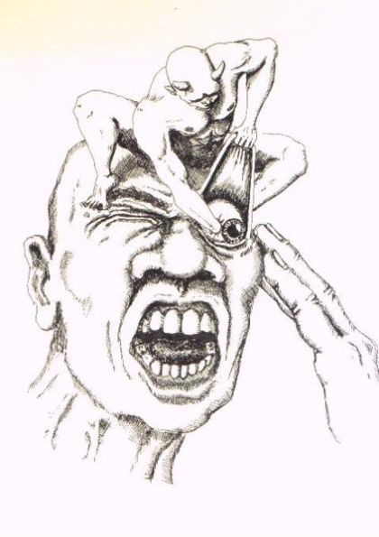 cluster headache nice drawing